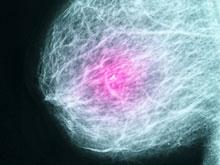 Детская диета влияет на вероятность появления рака груди во взрослом возрасте