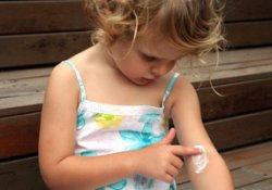 Лечение детского псориаза поможет избежать ожирения