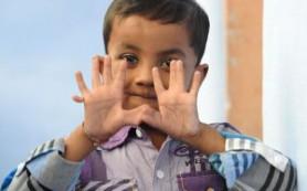 Родители ребенка с 25 пальцами не хотят операции