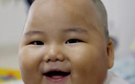 Из-за приема антибиотиков дети нередко набирают лишний вес