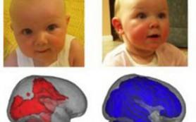 Материнское молоко оказалось стимулятором развития головного мозга