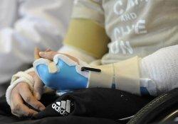 В США безруким детям-инвалидам станут пересаживать донорские конечности