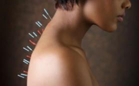 Иглоукалывание не помогает женщинам забеременеть