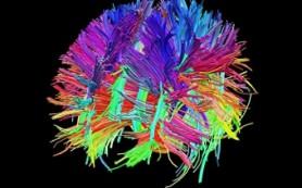 Связи в детском мозге усиливаются на 20% во время сна