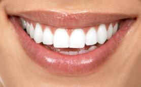 Правильное отбеливание зубов
