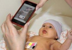 Ученые США создали новый метод диагностики желтухи новорожденных