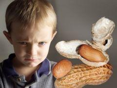 След арахиса в домашней пыли: улики ведут к аллергии у детей