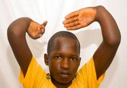Хирурги избавили мальчика от уникальной врожденной деформации рук