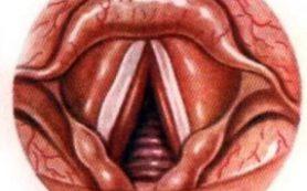 Лечение ларинготрахеита у детей: полезная информация для родителей
