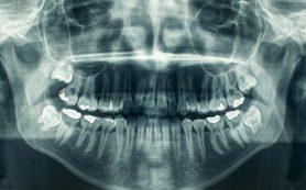 Рентген зубов у беременных повышает риск рождения ребенка с весом меньше нормы