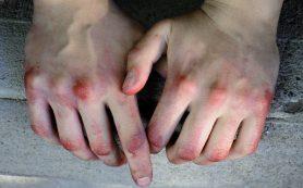 В Смоленской области подросток избил собутыльника