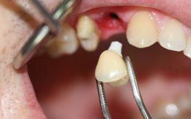 Протезирование зубов, виды протезов